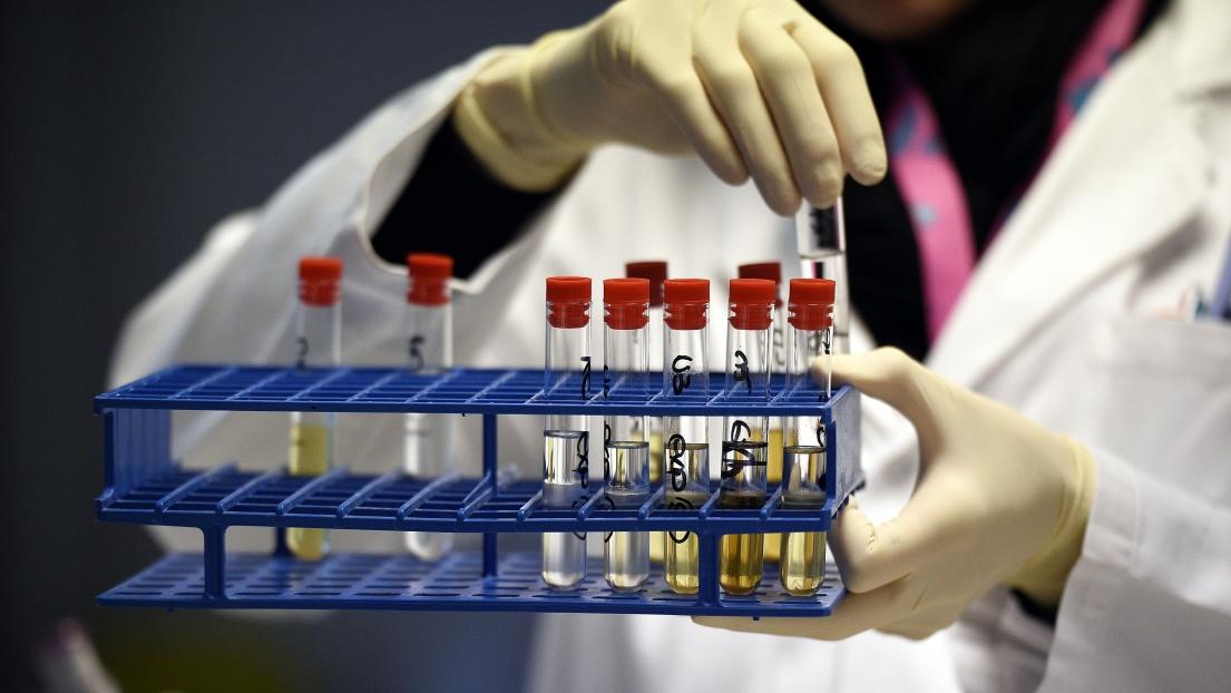 Tests antidopage