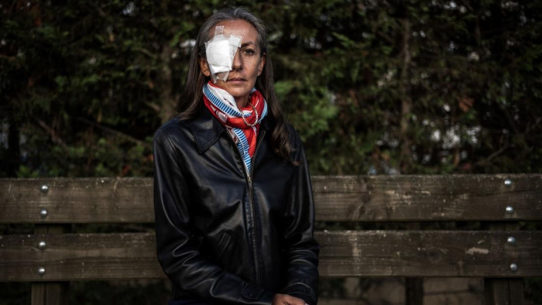 Yvelines : touchée par une balle de golf elle perd la vue